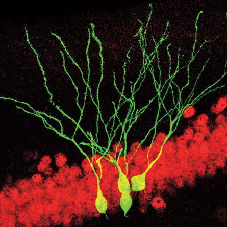 Newborn neurons (green, above) help mice build memories. Other research shows that antidepressants may help trigger neuron generation in the hippocampus.