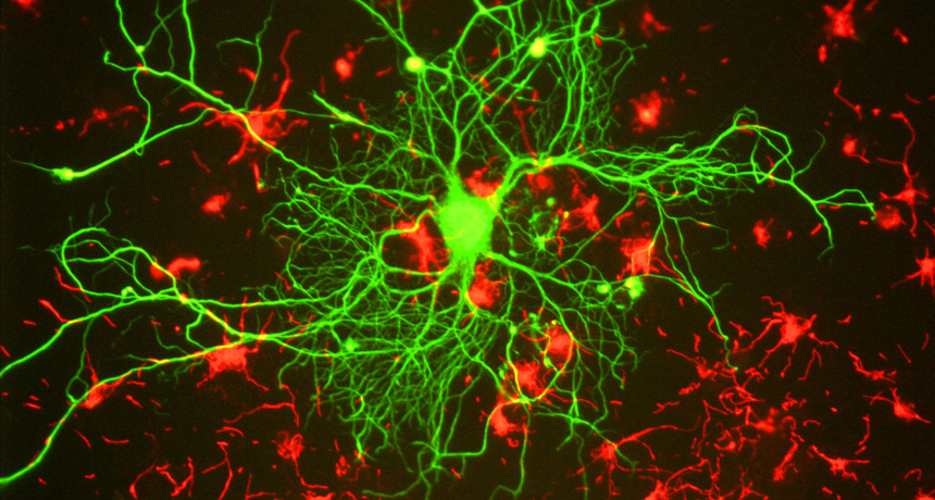 Stress and the susceptible brain | Science News