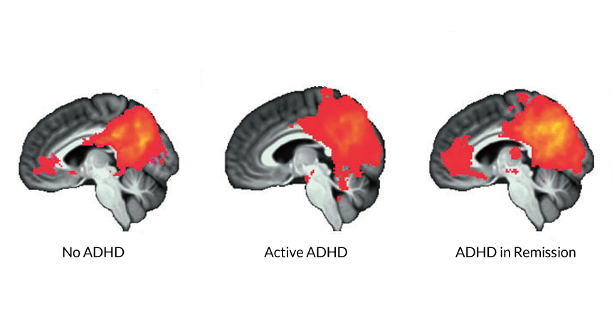 Mri Shows Brain Differences Among Adhd >> Brain Signal Reappears After Adhd Symptoms Fade Science News