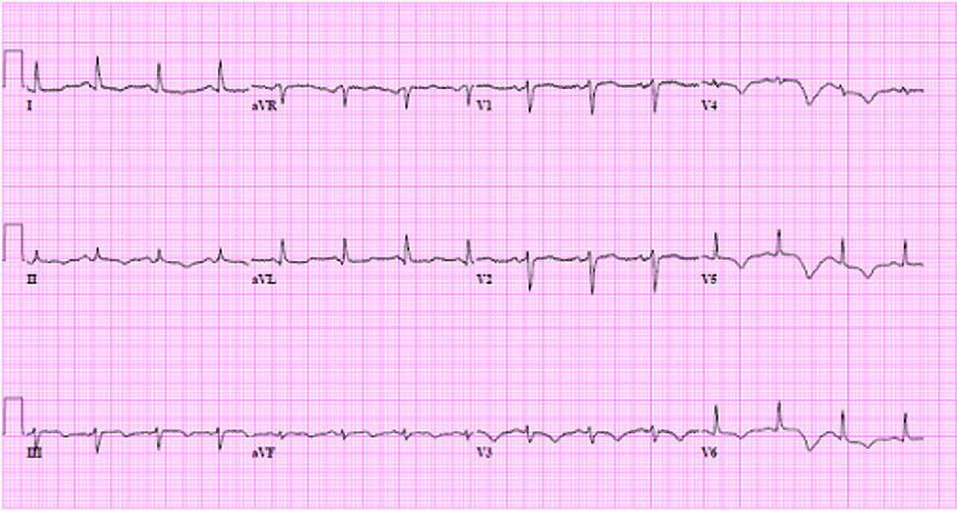 lines of an electrocardiogram
