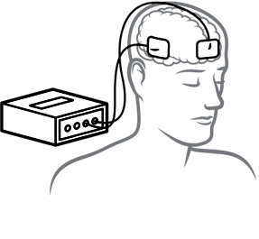 illustration of transcranial direct current stimulation