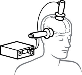 illustration of electroconvulsive therapy