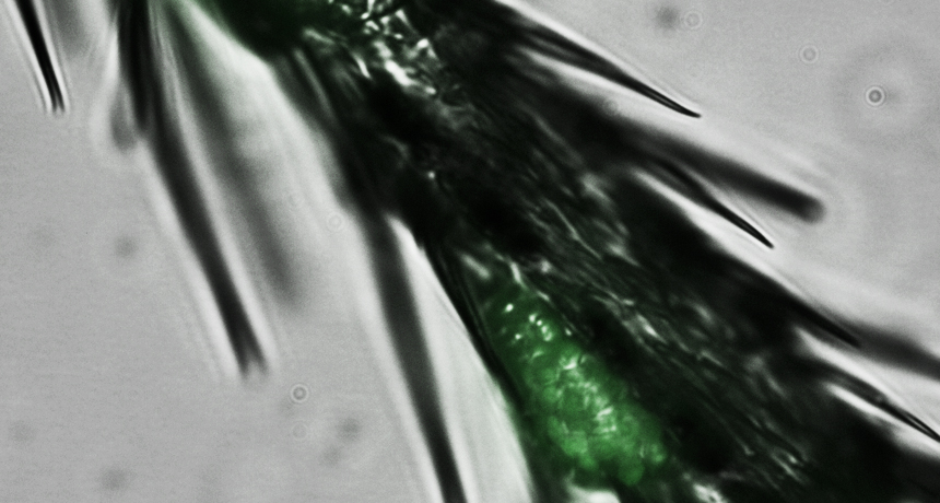 Fluorescent yeast cells