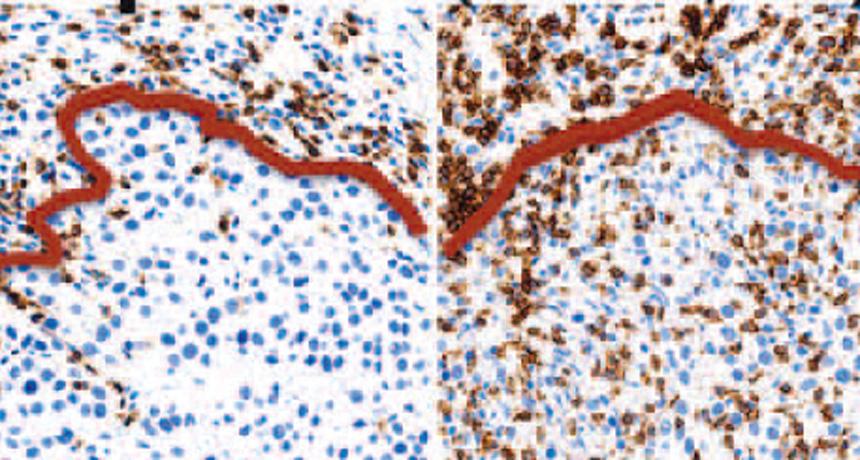 Melanoma tumor tissue and immune cells