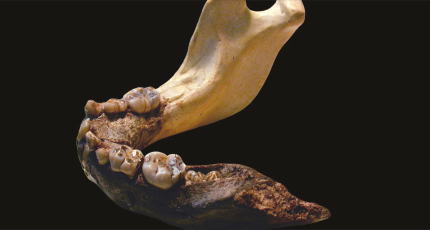 Paranthropus robustus jaw and teeth