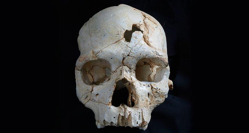 Cranium 17