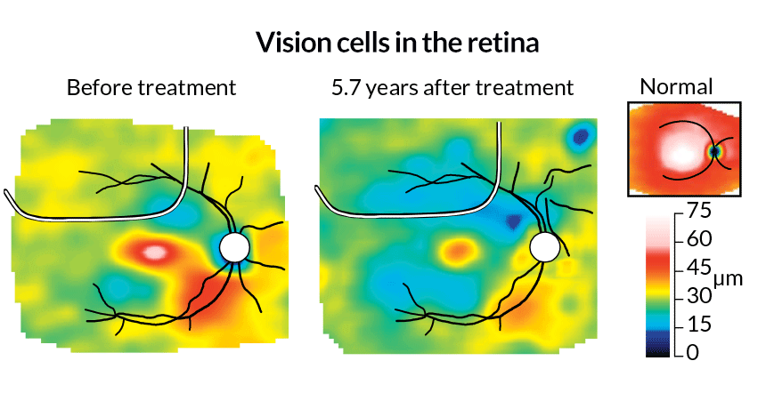 illustration of gene therapy in retina