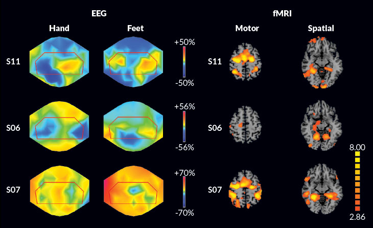 EEG and fMRI for consciousness