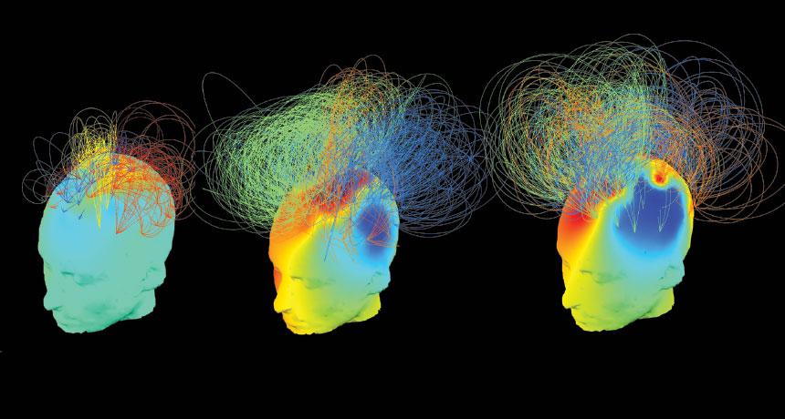 brain neworks