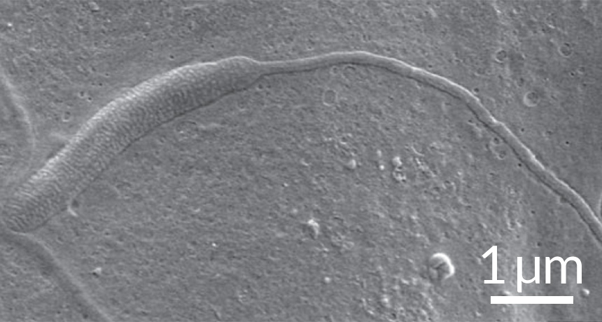 ancient sperm
