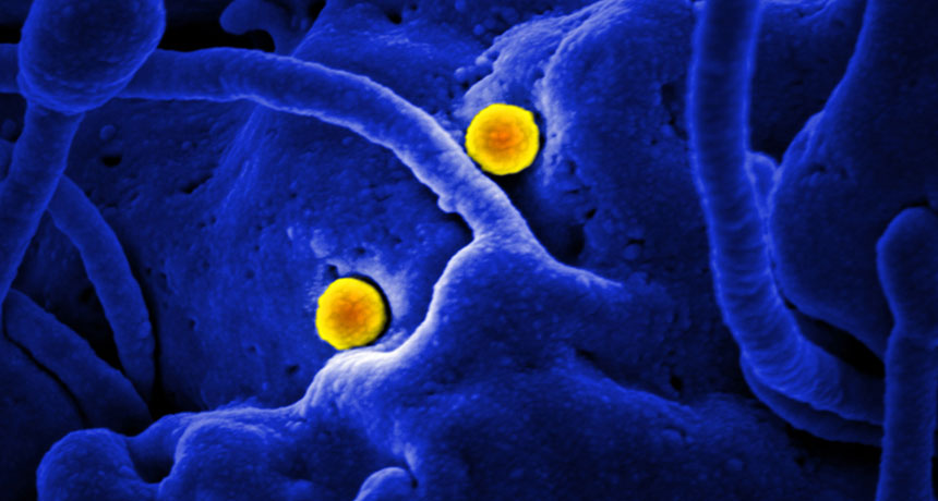 MERS virus particles