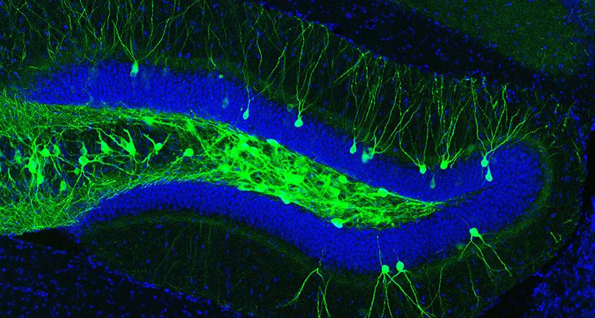 mouse nerve cells