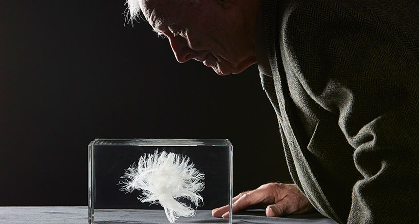 John Scott looks at a model of his white matter tracts