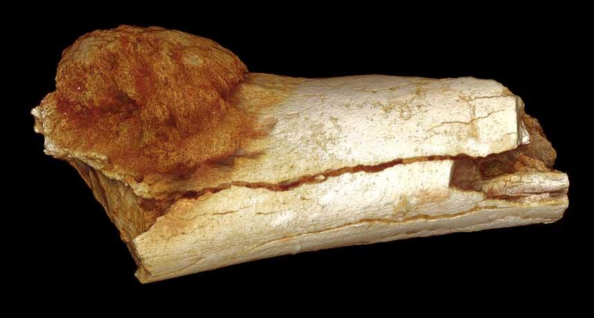 toe bone