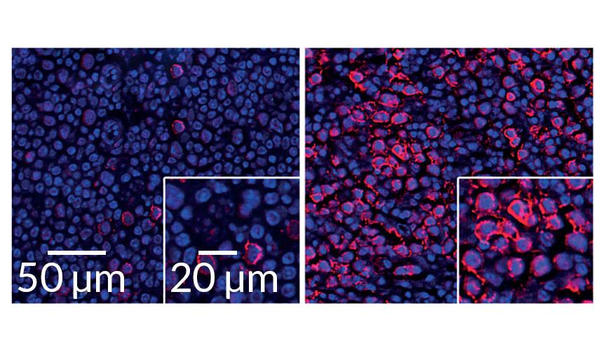 interferon in B cells