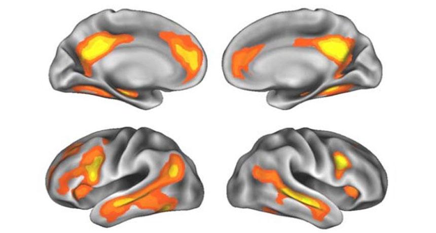 pregnancy brain