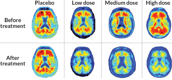 alzheimer's brain scans