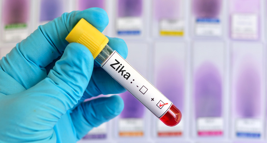 vial labeled zika