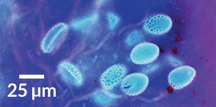 pollen tubes in lillies