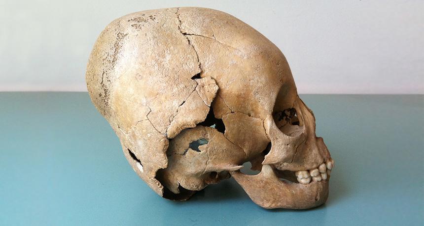 Hun skull