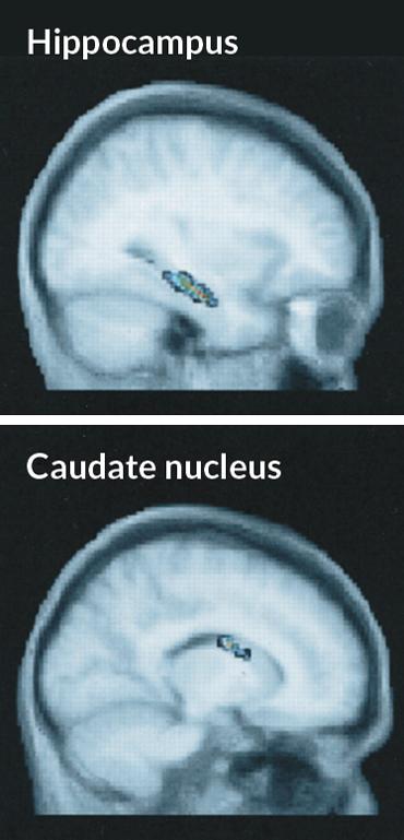 MRI scans of hippocampus and caudate nucleus