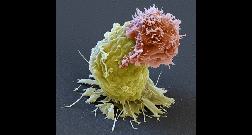 CAR-T cell attacking a leukemia cell