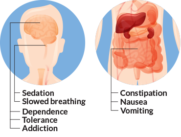 opioid side effects in the brain and gut