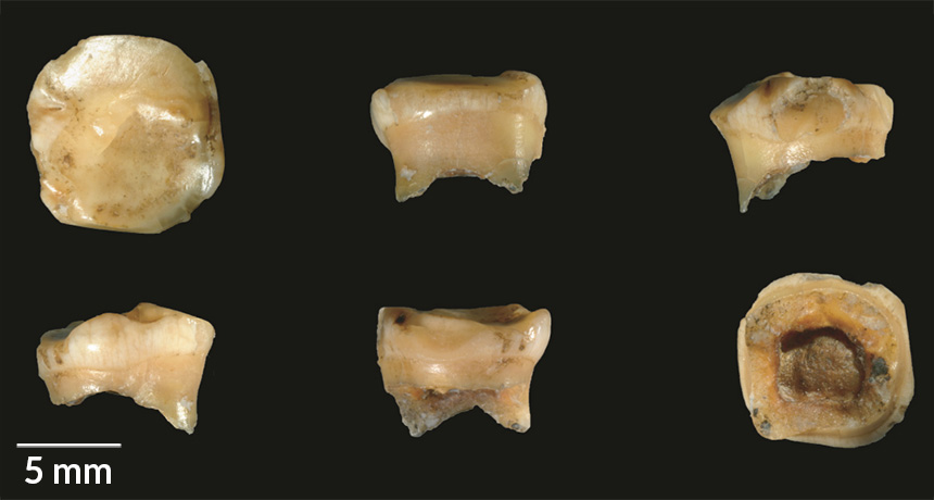 Denisovan fossil teeth
