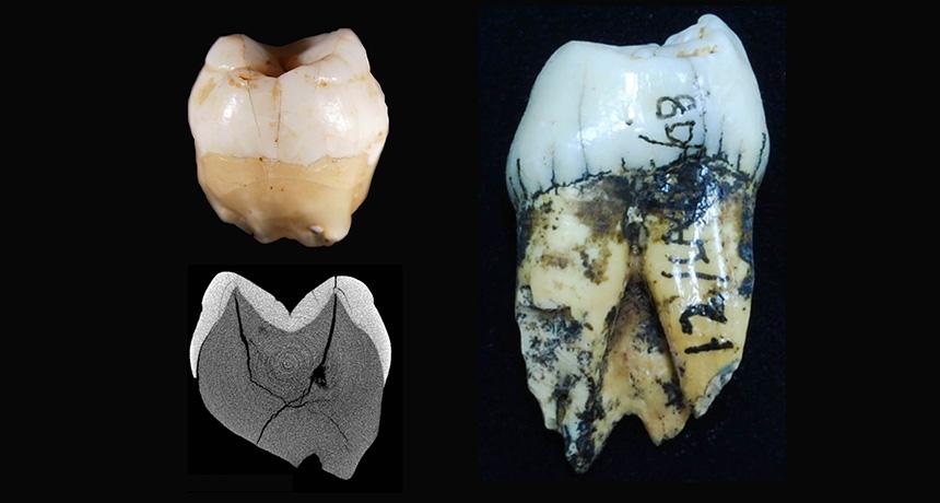 human teeth from Sumatran cave