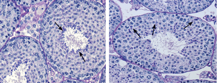 mouse seminiferous tubule