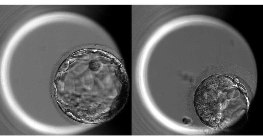 human blastocysts