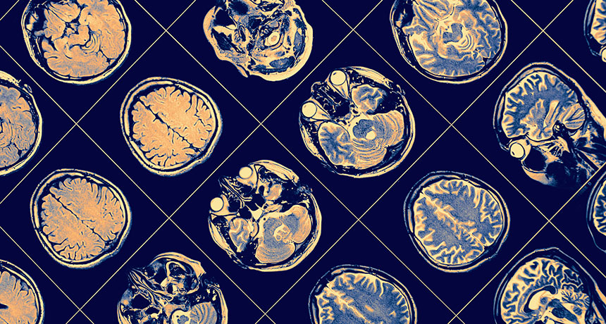 MRI images of brains