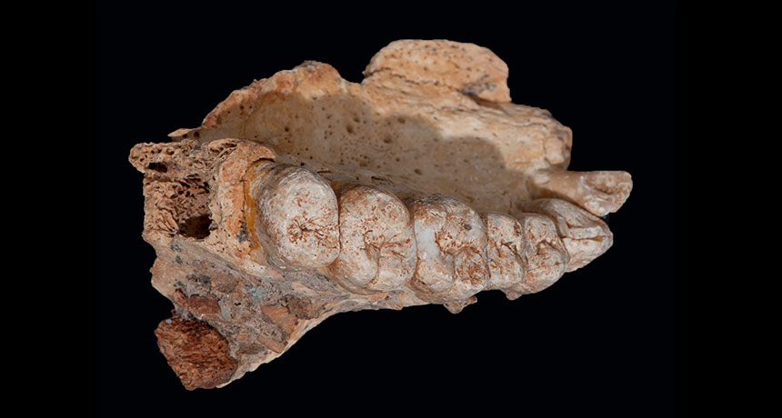 partial jaw bone