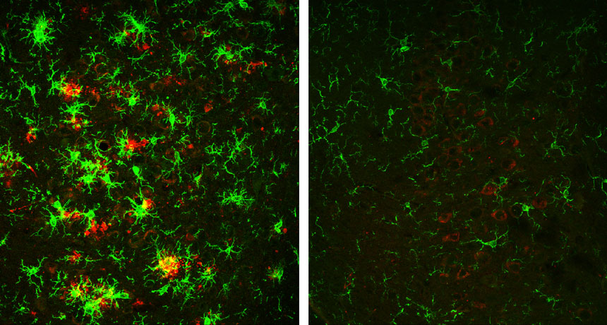 Alzheimer's protein