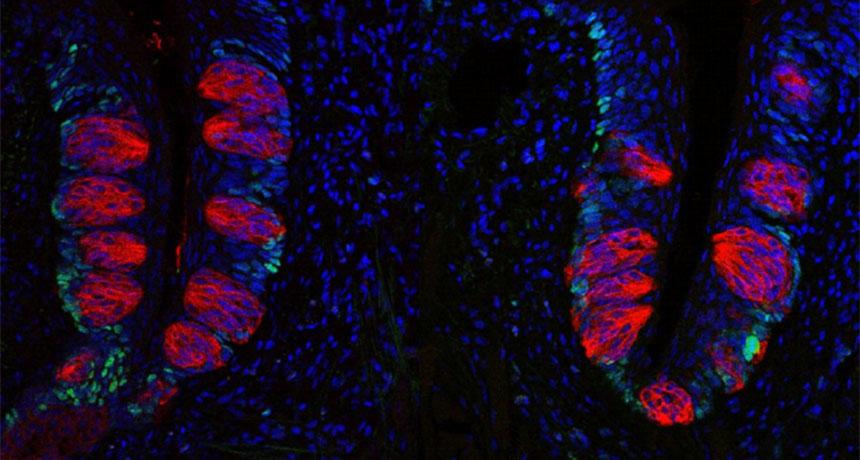 progenitor cells