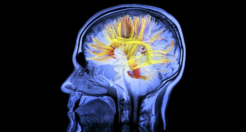 brain white matter