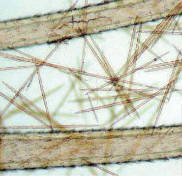 mangnified image of theoak processionary caterpillar's detachable setae