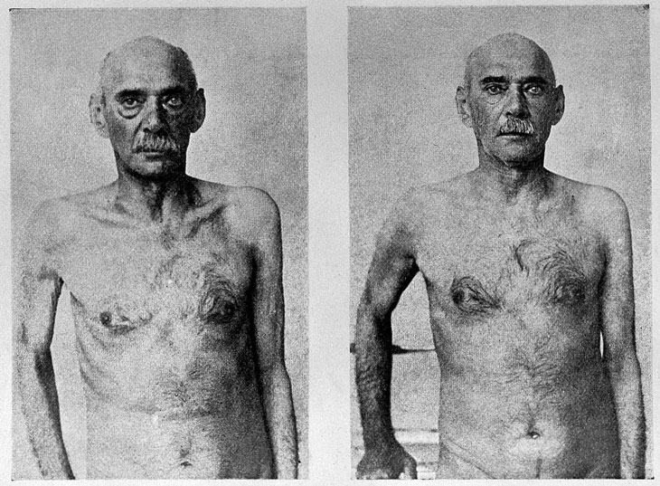 before-and-after photo of a 72-year-old man who had a vasectomy