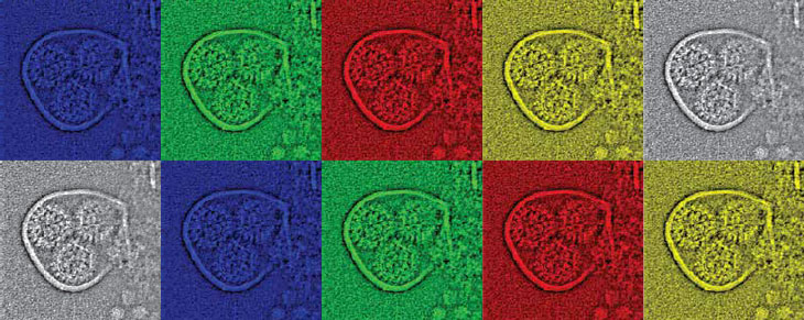 electron micrograph image showing viruses packaged in a vesicle