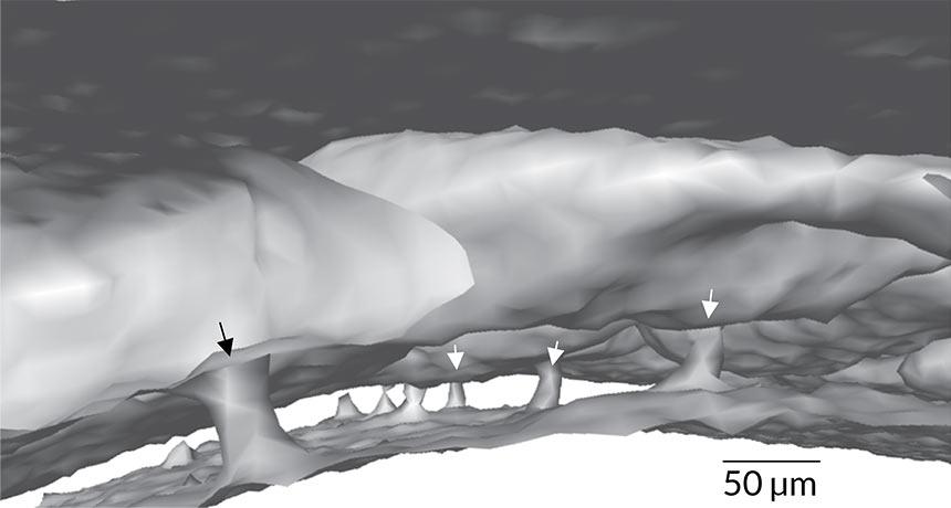skull channels