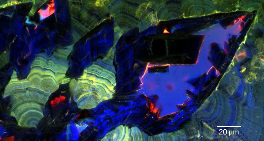 Kidney Stones Grow And Dissolve Much Like Geological Crystals Science News