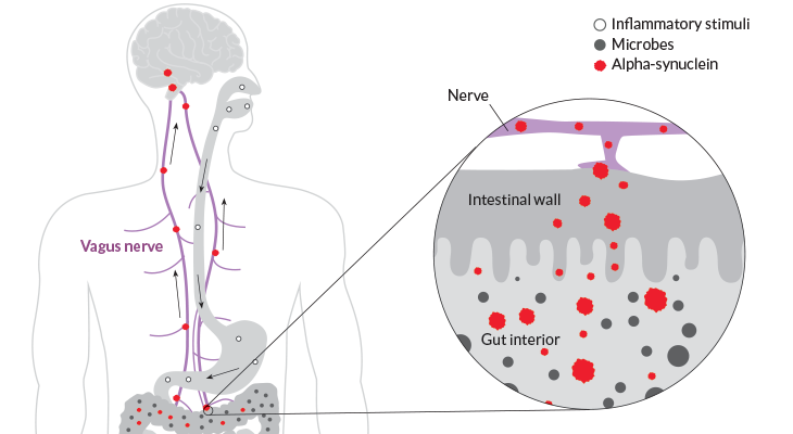 an illustration showing how an inflammatory reaction in the gut can cause nerve death in the brain