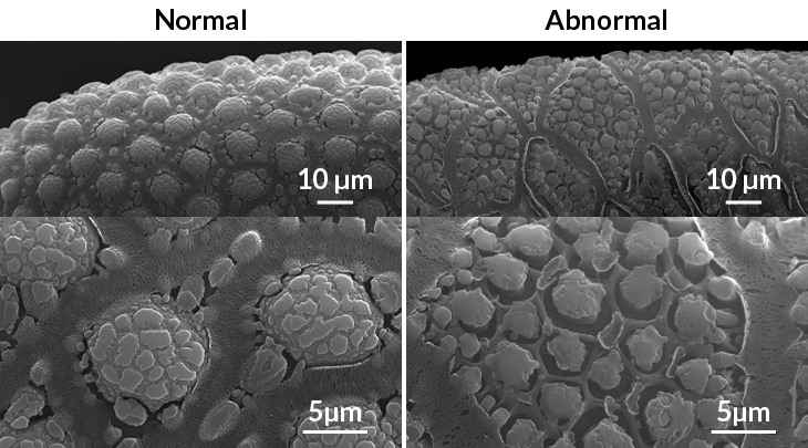scanning electron micrograph images of the shells of Aedes aegypti eggs