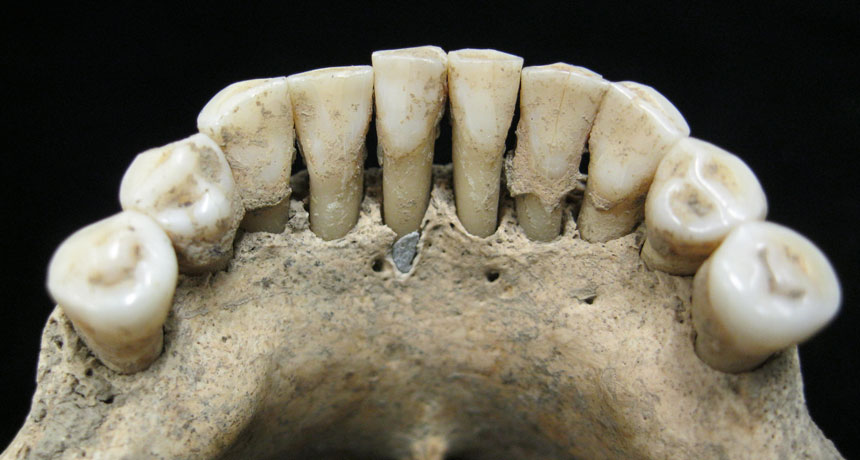jaw of medieval woman