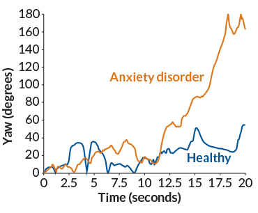a graph showing how children with an anxiety disorder reacted differently to a percieved threat