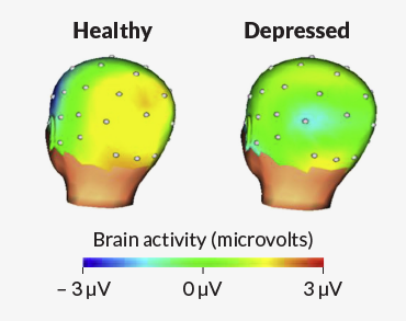 brain activity in healthy and depressed kids