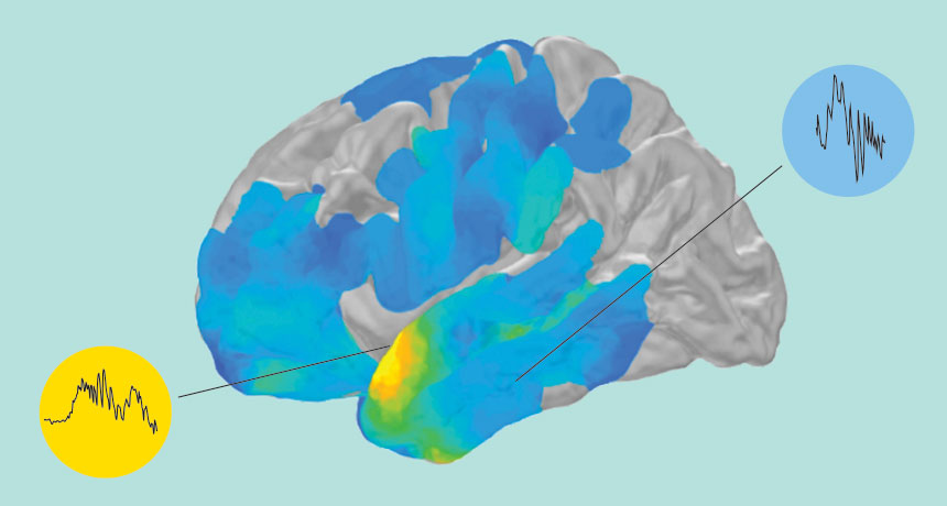 brain ripples