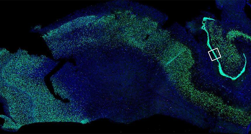 hippocampus microscopy