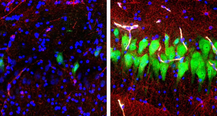 pig brain cells
