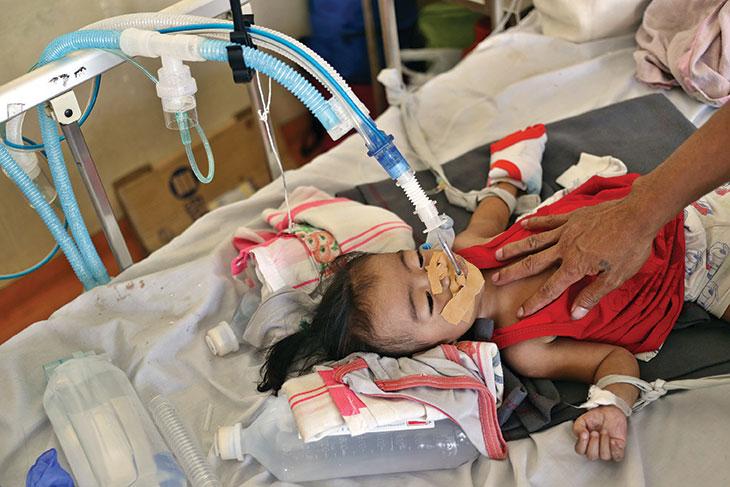 child on respirator